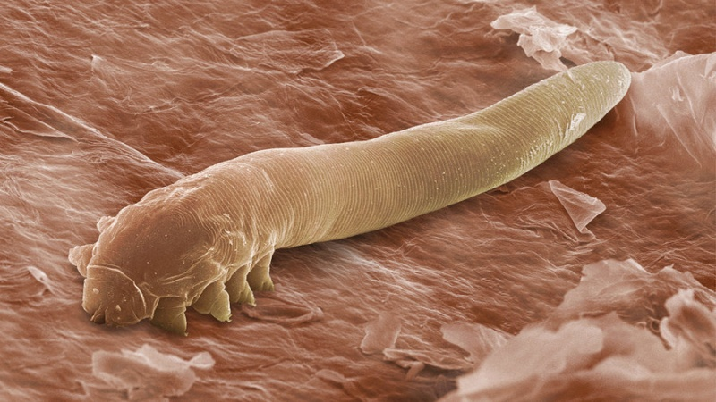 File:Demodex.jpg